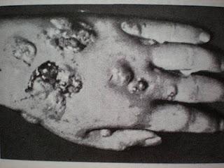 Huzatot kapott arc kezelése