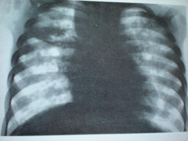 Bronchopneumonie cu evoluţie supraacută