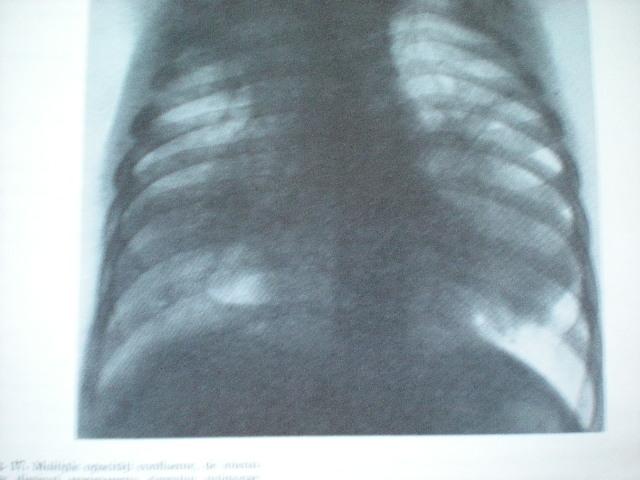 Bronchopneumonie cu focare multiple