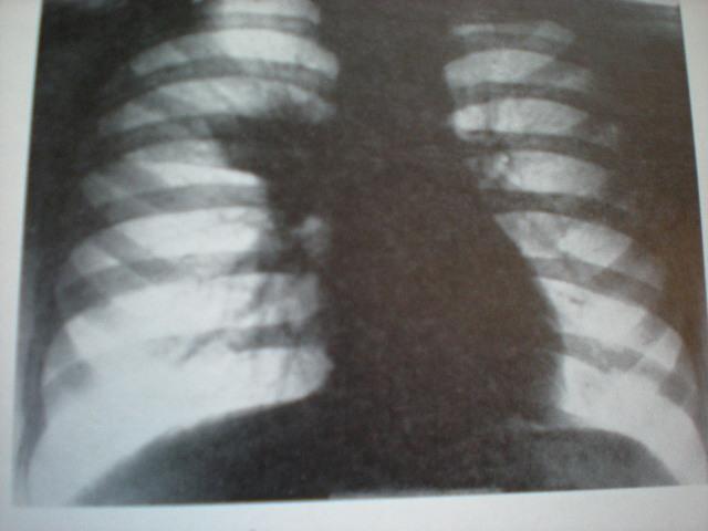 Criză de astm-Tuberculoză primară