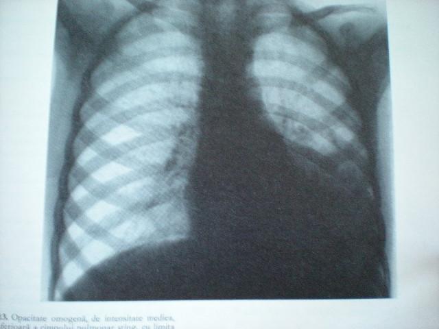 Pneumonie bazală stîngă
