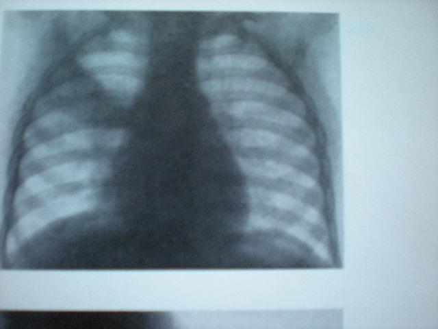 Pneumonie dreaptă superioră