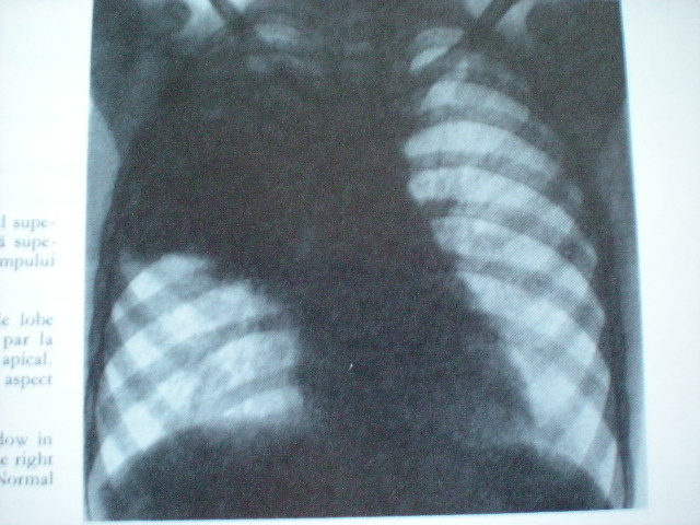 Pneumonie dreaptă superioară