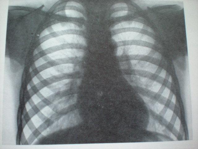 Pneumonie în cadrul intoxicaţiei cu petrol