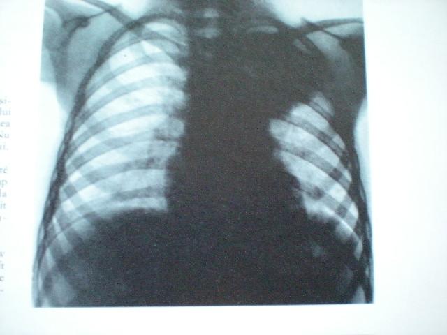 Pneumonie lobară superioară stg
