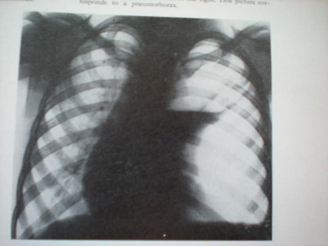 Pneumotorax spontan stîng