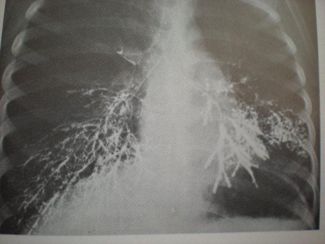 Bronşiectazie-formă cilindrică