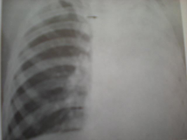 Colaps pulmonar drept