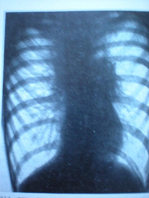 Cord în picătură-Diafragme coborîte-Astm infantil