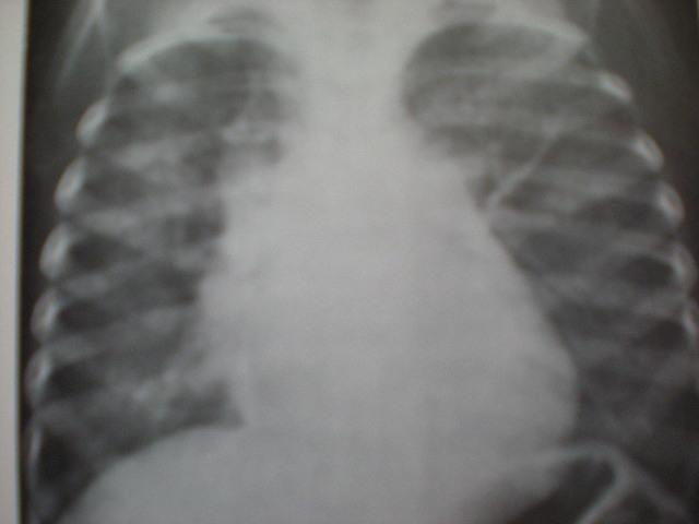 Edem pulmonar acut