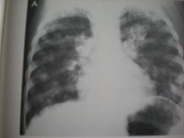 Metastaze pulmonare-Tu-WILLMS