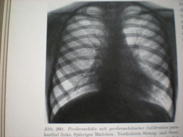 Peribronşită