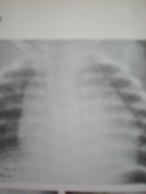 Pseudo-cardiomegalie-prin hipertrofie de timus