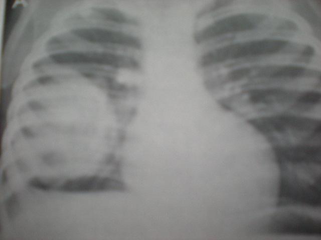 Tu.WILLMS-Metastază pulmonară