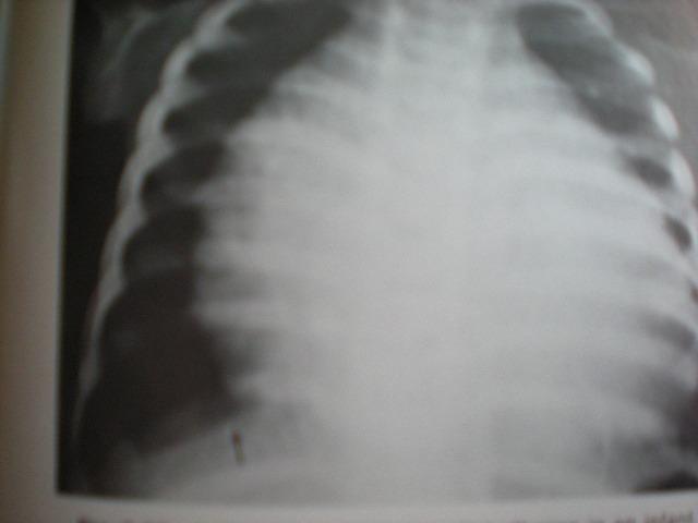 Cardiomegalie boala lui EISENMENGER