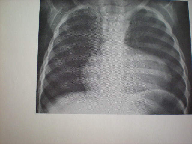 Golful cardiac scobit-Stenoză pulmonară