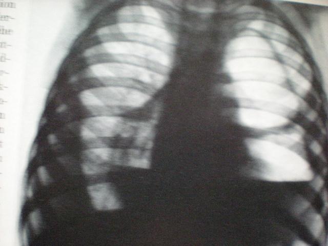 Piopneumopericardium