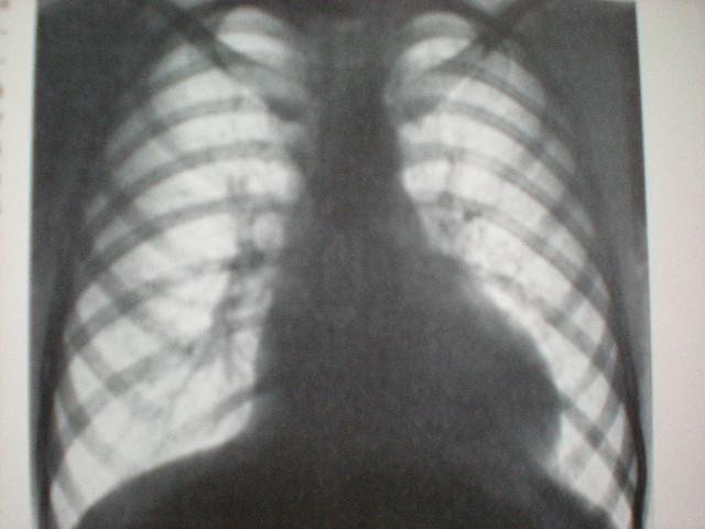 Stenoza istmului aortic