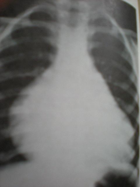 Stenoză mitrală congenitală-golful cardiac umplut,rectilin
