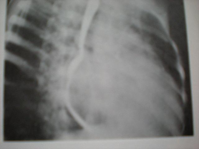 Stenoză mitrală-mărirea atriului stg-esofagogramă