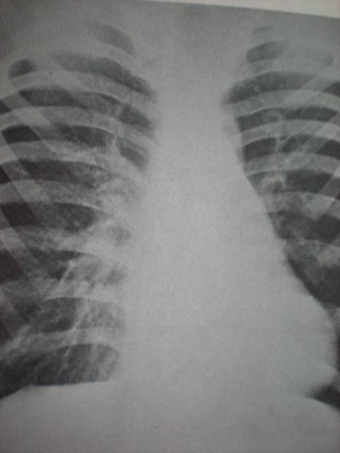 Torace în pîlnie-cord coprimat a-p