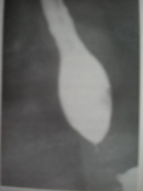 Cardiospasm