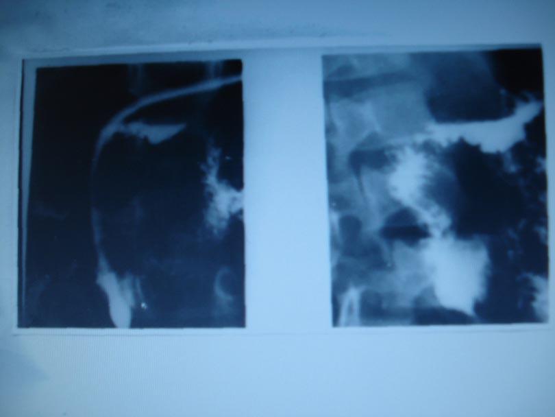 Duodenografie hipotonă cu tub