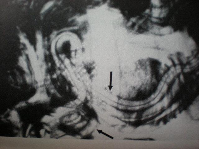 Invazie de ascaris al intestinului subţire