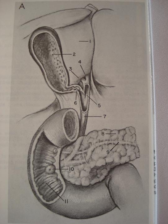 Segmentul duodeno-veziculo-pancreatic