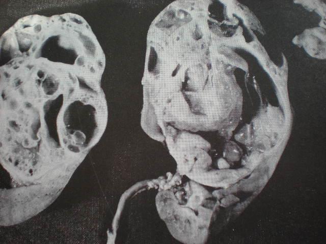 Polichistoză renală-piesă anatomică
