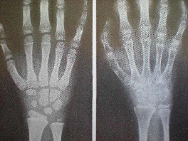 Artrită reumatoidă