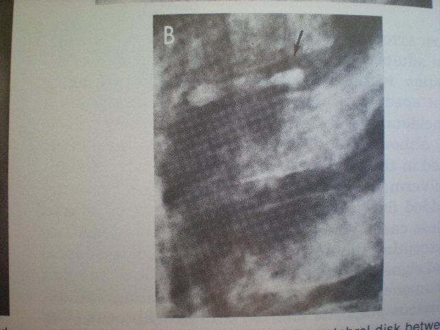 Calcifierea discului intervertebral