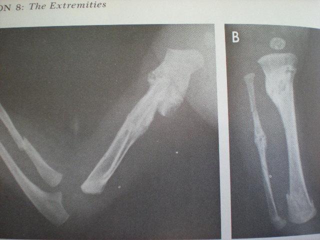 Osteopetroză-Fracturi multiple